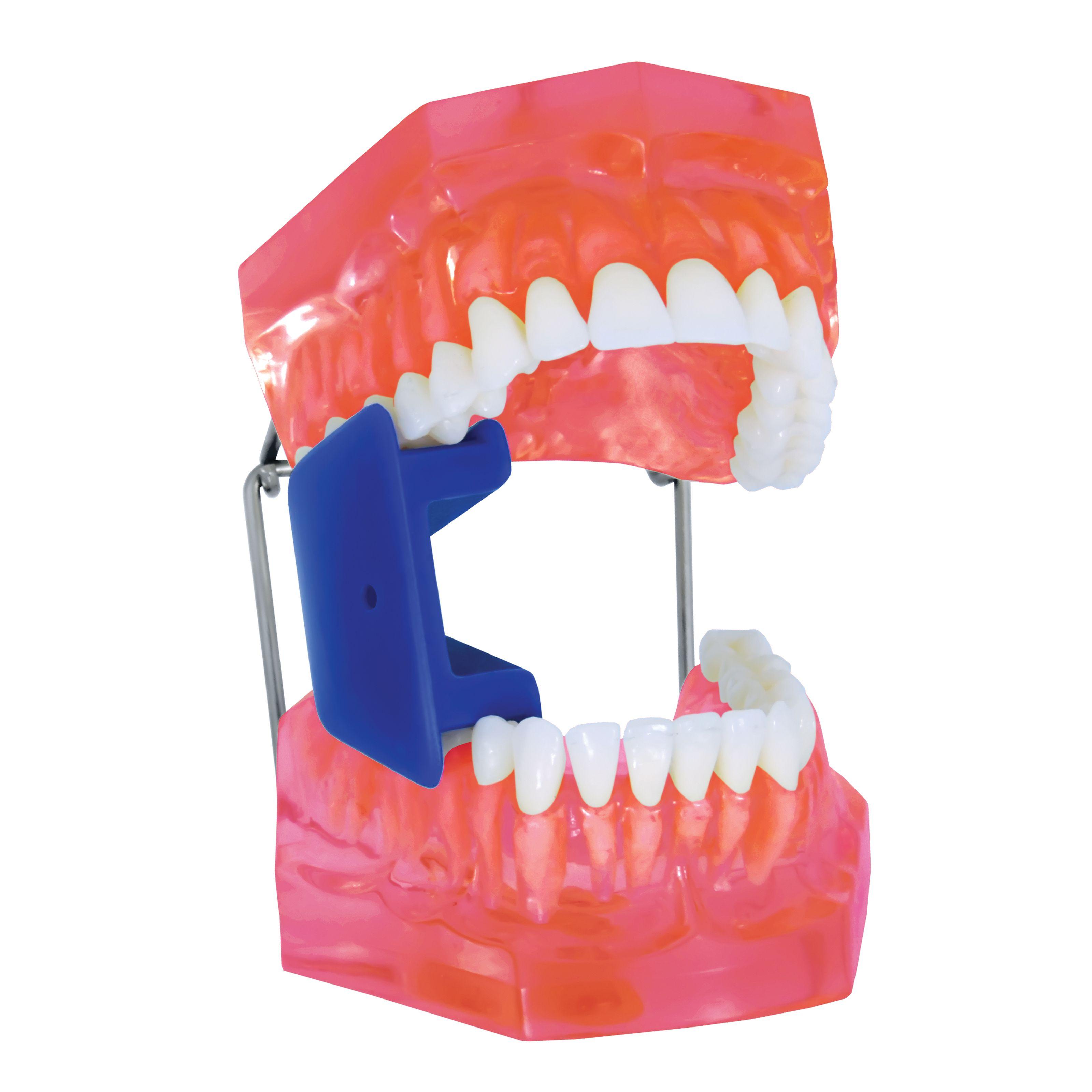 Mouth prop, MARKEL, child, medium size